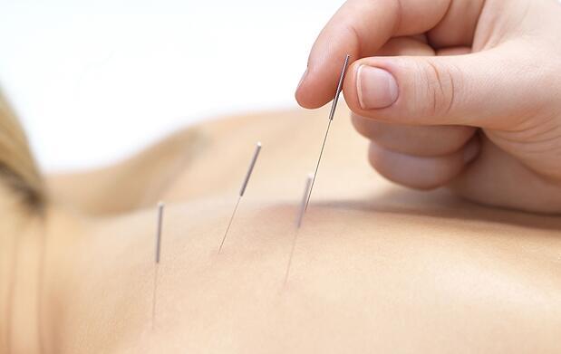 Sesión de acupuntura médica por 13,95€